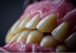 Nieuw kunstgebit Tandprothetische praktijk van den Eerenbeemt Deurne