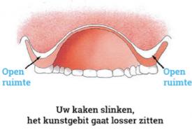 Rebasing Tandprothetische praktijk van den Eerenbeemt Deurne